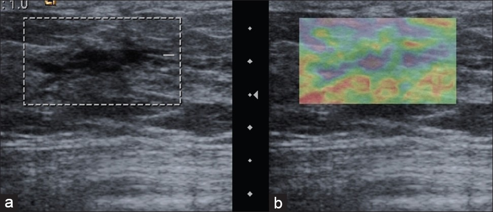 Figure 4: A 27-year-old woman with fibrocystic myopathy. B-mode USG image (a) shows hypoechoic fibrocystic changes and USE image (b) shows normal color pattern with Itoh elasticity score of 1 suggestive of benign lesion