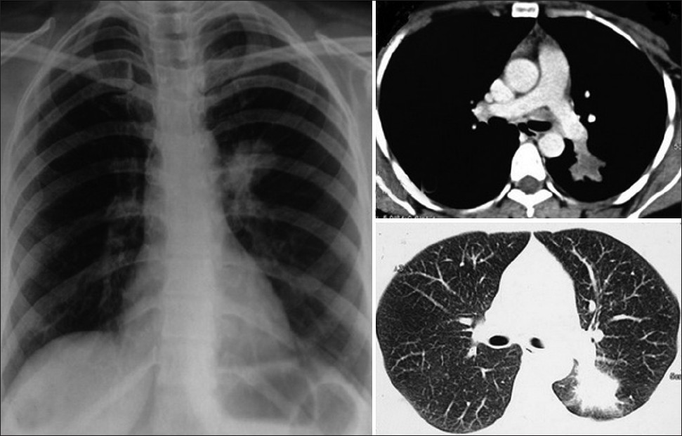 Figure 4: X-ray and computed tomography chest shows irregularly marginated soft-tissue attenuation mass lesion with peripheral halo in the left lower zone