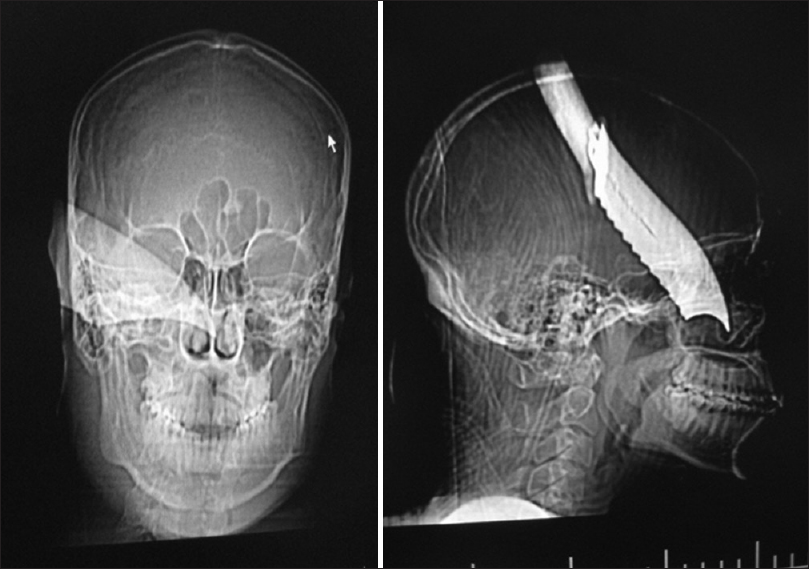 Figure 1: Scanograms of a patient assaulted with Jackknife
