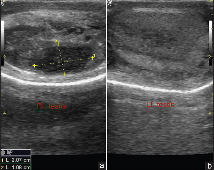 Classical case of tuberculous Epididymo-orchitis and how to