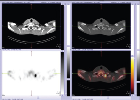 Figure 1: Bone scintigraphy with <sup>99m</sup>Tc-methylene diphosphonate. Single-photon emission computed tomography image revealed a solitary focal area of intense increased uptake of methylene diphosphonate on the left side of T1 vertebra (lower left image). The fused single-photon emission computed tomography-computed tomography image (lower right image) localized the focal area of uptake to a lytic lesion in the vertebral end of the left first rib