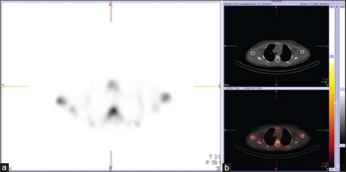 Figure 2: Bone scintigraphy with <sup>99m</sup>Tc-methylene diphosphonate. Single-photon emission computed tomography image revealed a focal area of moderate increased uptake of methylene diphosphonate on the left side of T4 vertebra (a). This finding is nonspecific. The fused single-photon emission computed tomography-computed tomography image (b) localized this area of uptake to a mixed lytic-sclerotic lesion in the vertebral body