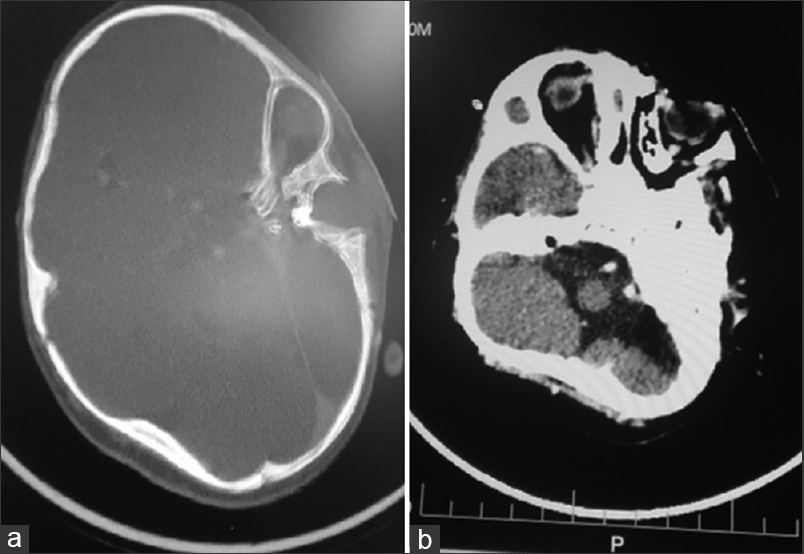 Figure 3: Axial computed tomography scan of the head showing two bony orbital cavities (vertical and horizontal double edged arrows) in the left temporal region (a) bone window (b) brain window