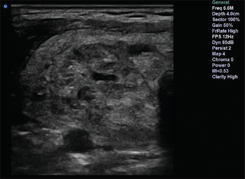 Comparison Of The Diagnostic Performance Of Ultrasonography With