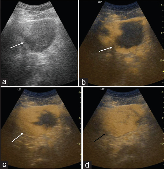 Figure 8: A 54-year-old male patient who is a known case of chronic renal failure presented with mild abdominal pain from 1 week. Routine screening ultrasound shows a large hypoechoic lesion with irregular margins in the left lobe of the liver (white arrow, a). Contrast-enhanced ultrasound done targeting the lesion is showing peripheral nodular enhancement in arterial phase (white arrow, b), gradual centripetal filling in venous (white arrow, c) and complete filling in the delayed phases at 150 s after contrast injection (black arrow, d)
