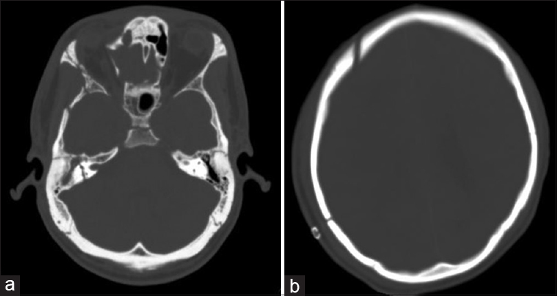 Figure 2: Axial cranial computed tomography scan in bone window showing (a) multiple fractures of the base of skull on the right and (b) simple linear fractures of the right frontal and parietal bones